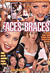 Faces With Braces